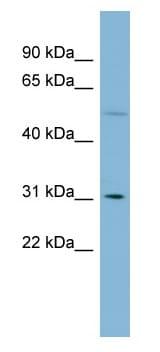 Western blot - MRPL28 antibody (ab98922)