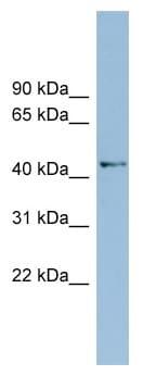 Western blot - AMDHD1 antibody (ab98937)