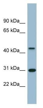 Western blot - ARMCX3 antibody (ab98938)