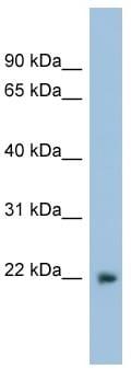 Western blot - Lbx2 antibody (ab98941)