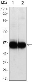 Western blot - VCAM1 antibody [6G9] (ab98954)
