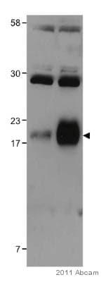 Western blot - Anti-SCE1 antibody (ab98965)