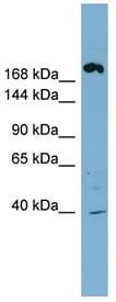 Western blot - ABCC11 antibody (ab98979)