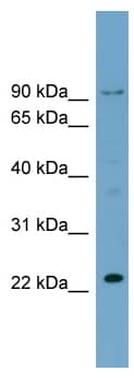 Western blot - C15orf15 antibody (ab98996)