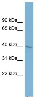 Western blot - A4GALT antibody (ab98998)