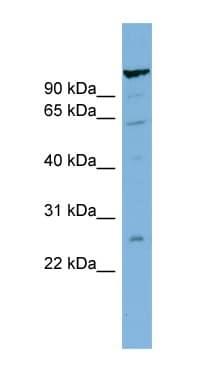 Western blot - C6ORF10 antibody (ab99030)