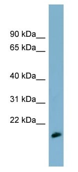 Western blot - MDP1 antibody (ab99033)