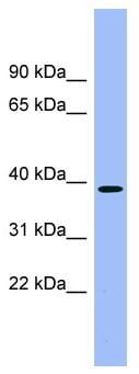 Western blot - ACMSD antibody (ab99057)