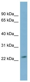 Western blot - DUXA antibody (ab99058)