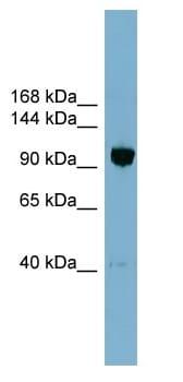 Western blot - ORP8 antibody (ab99069)
