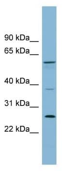 Western blot - GDAP2 antibody (ab99077)