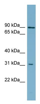 Western blot - ABCD2 antibody (ab99091)