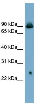 Western blot - Glyt2 antibody (ab99098)