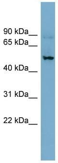 Western blot - EAAT3 antibody (ab99101)