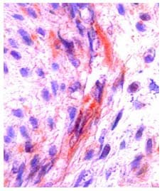 Immunohistochemistry (Formalin/PFA-fixed paraffin-embedded sections) - Anti-MCSF antibody (ab99109)