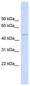 Western blot - HIP55 antibody (ab99113)