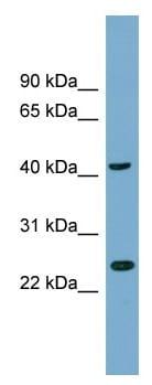 Western blot - TTC23L antibody (ab99128)