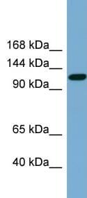 Western blot - KCC2 antibody (ab99129)
