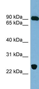 Western blot - VPS53 antibody (ab99134)
