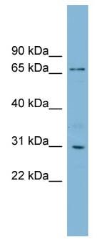 Western blot - TBCCD1 antibody (ab99135)