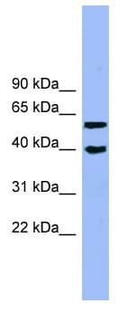 Western blot - ALLC antibody - N-terminal (ab99145)