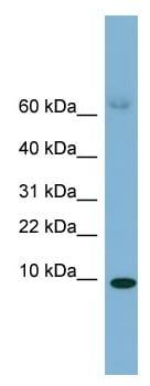 Western blot - Anti-SAA4 antibody (ab99182)