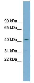 Western blot - ZDHHC18 antibody (ab99183)