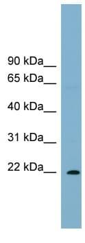 Western blot - PCNP antibody (ab99206)