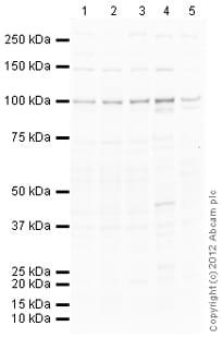 Western blot - Anti-FGFR2 antibody (ab99230)