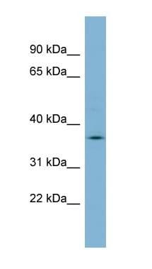 Western blot - MARCH9 antibody (ab99231)