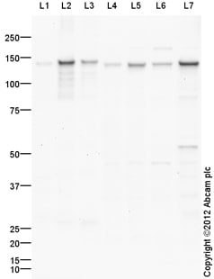 Western blot - Anti-Collagen VI antibody (ab99249)