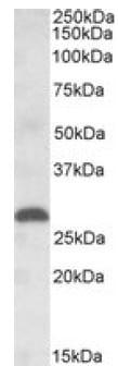 Western blot - PLGF antibody (ab99250)