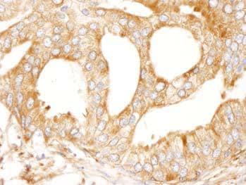 Immunohistochemistry (Formalin/PFA-fixed paraffin-embedded sections) - MAP4 antibody (ab99258)
