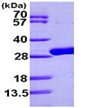 SDS-PAGE - udp protein (ab99262)