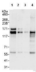 Western blot - AZI1 antibody (ab99315)