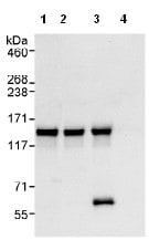 Immunoprecipitation - AZI1 antibody (ab99315)