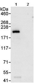 Immunoprecipitation - UACA antibody (ab99323)