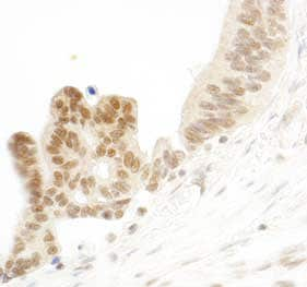 Immunohistochemistry (Formalin/PFA-fixed paraffin-embedded sections) - E74 like factor 1 antibody (ab99401)
