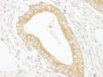Immunohistochemistry (Formalin/PFA-fixed paraffin-embedded sections) - MAP4K4 antibody (ab99402)