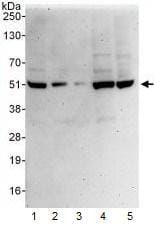 Western blot - PSMD11 antibody (ab99413)