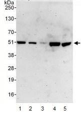 Western blot - PSMD11 antibody (ab99414)