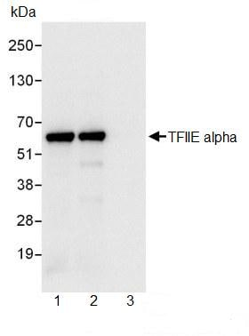 Immunoprecipitation - TFIIE alpha antibody (ab99416)