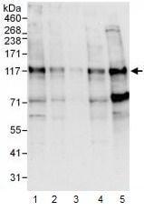 Western blot - NFATC4 antibody (ab99431)