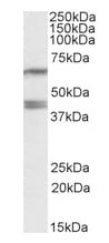 Western blot - PON2 antibody (ab99550)