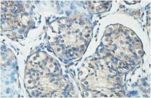 Immunohistochemistry (Formalin/PFA-fixed paraffin-embedded sections) - HERC6 antibody (ab99949)