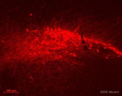 免疫组织化学(冰冻切片)-抗酪氨酸羟化酶抗体-神经元标记物(ab112)