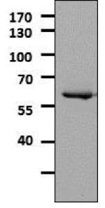 Western blot - Anti-Tyrosine Hydroxylase antibody - Neuronal Marker (ab112)