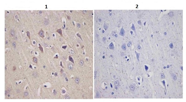 Immunohistochemistry (Formalin/PFA-fixed paraffin-embedded sections) - Anti-Tyrosine Hydroxylase antibody (ab112)