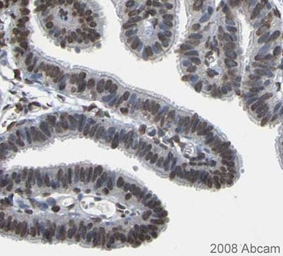 Immunohistochemistry (Formalin/PFA-fixed paraffin-embedded sections) - Anti-EMSY antibody (ab123)