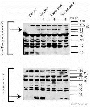 Western blot - Anti-Acetylated Proteins antibody - ChIP Grade (ab193)